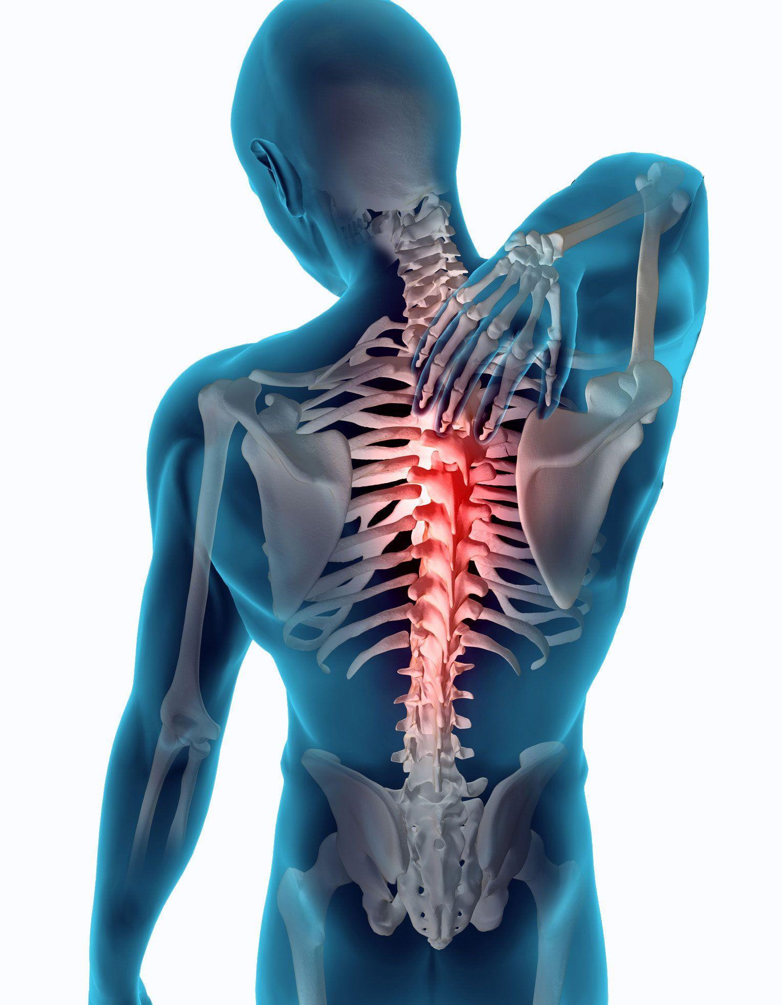 La hernia del departamento lumbar de la columna vertebral el método público del tratamiento
