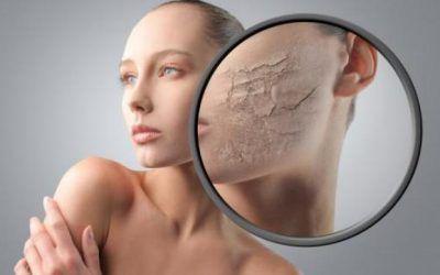 La piel de la cara (Problemas faciales)